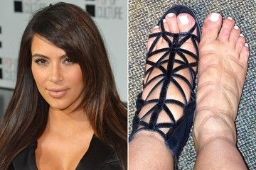 Kim Kardashian's Sad Swollen Feet! Also, Is it Weird When Celebrities Instagram Their Feet?
